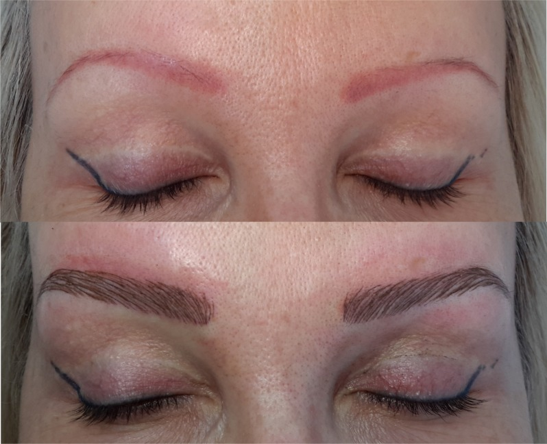 Cosmetic Eyebrow Tattoo | Eyebrow Tattooing - Melbourne | Head to Toe