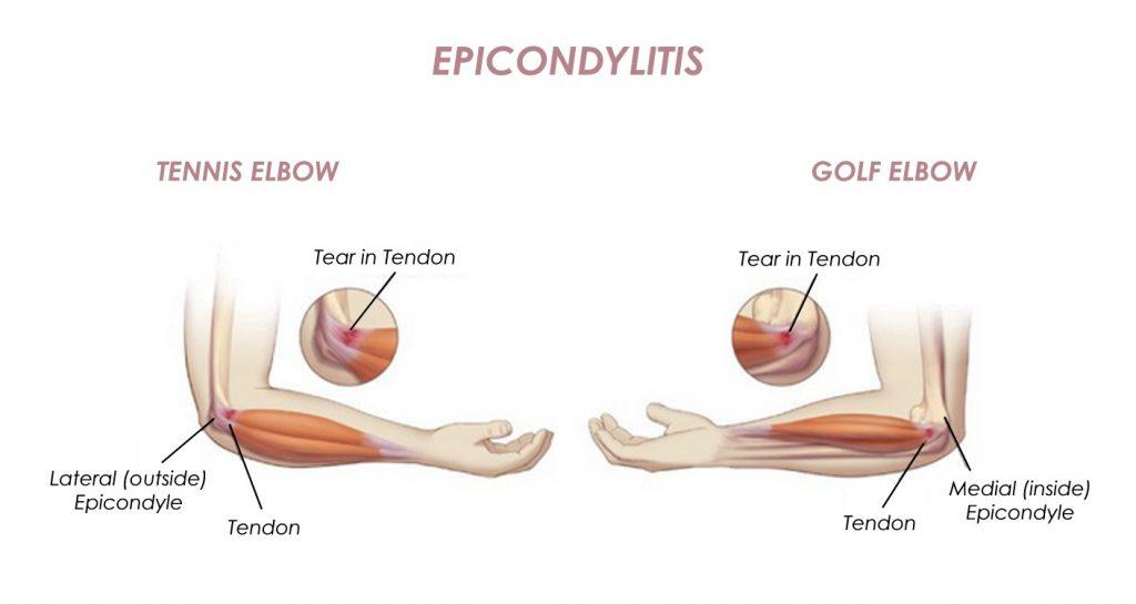 Epicondylitis