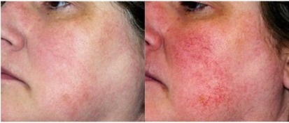 Rosacea&Dischromia Bafore&After