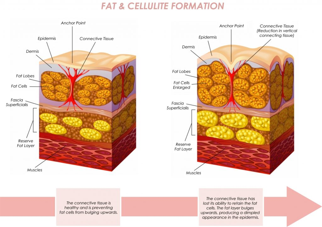 Fat & Cellulite - Large