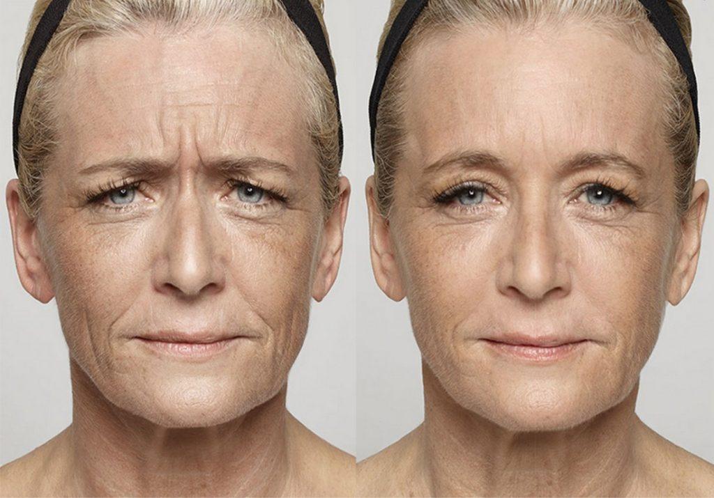 Anti-Wrinkle 2