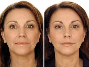 facial-shaping-1-300x227