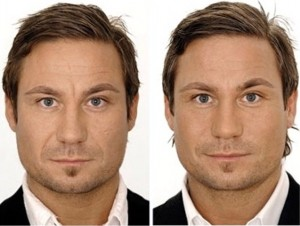 facial-shaping-2-300x226